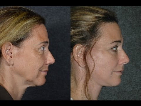 Facelift Surgery S-Lift on 50-Year-Old Woman   Ponytail Technique Facelift