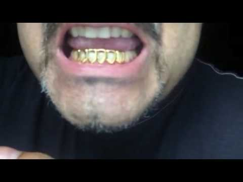Fitting 6 Open Face Teeth Grillz - YouTube 0f389ea2928c