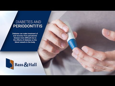 How Does Diabetes Affect Periodontal Disease?