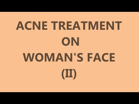 Acne Treatment on Woman's Face (II) - Left side - Самые