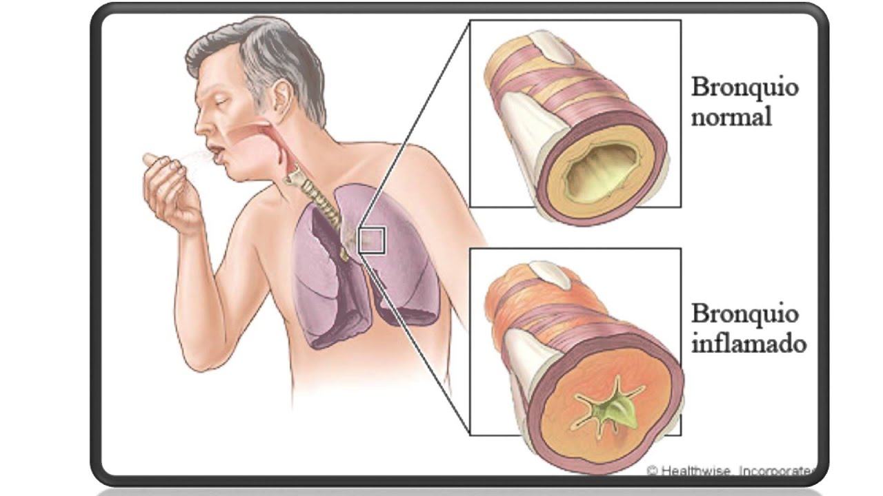 Ha dejado a fumar la tos no existe