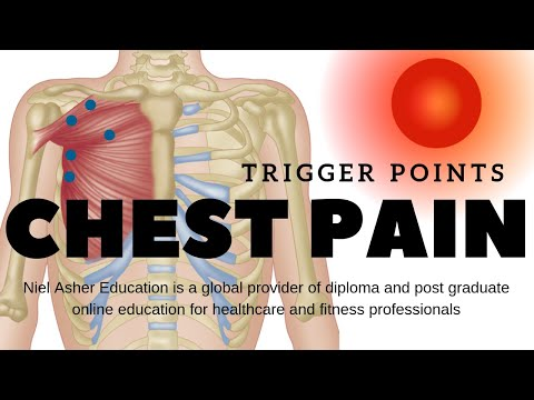 chest-pain---trigger-points
