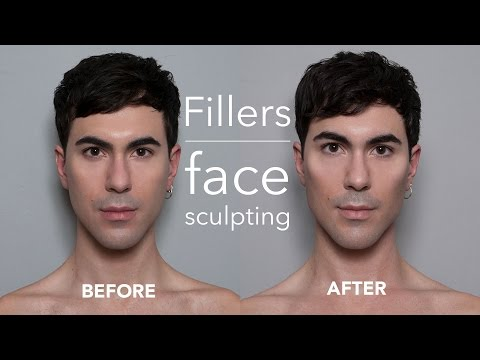 non-surgical-filler-injections-for-men-(cheeks-&-chin)---face-sculpting