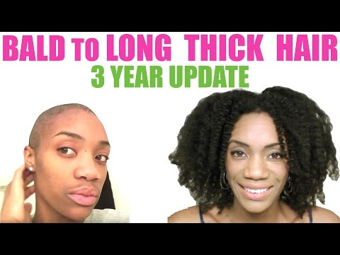 3 Years Natural &  Alopecia Free Hair Update | Bald to Full Thick Hair