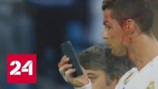 Проверил свой вид в зеркале мобильного: Роналду рассекли бровь ударом ноги - Россия 24
