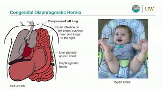 Congenital Diaphragmatic Hernia: A Multidisciplinary Approach to a Multi-Faceted Disease