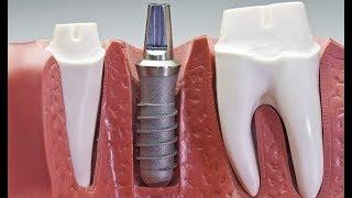 Стоматологи-эксперты: Почему лучше не чистить зубы сразу после завтрака?