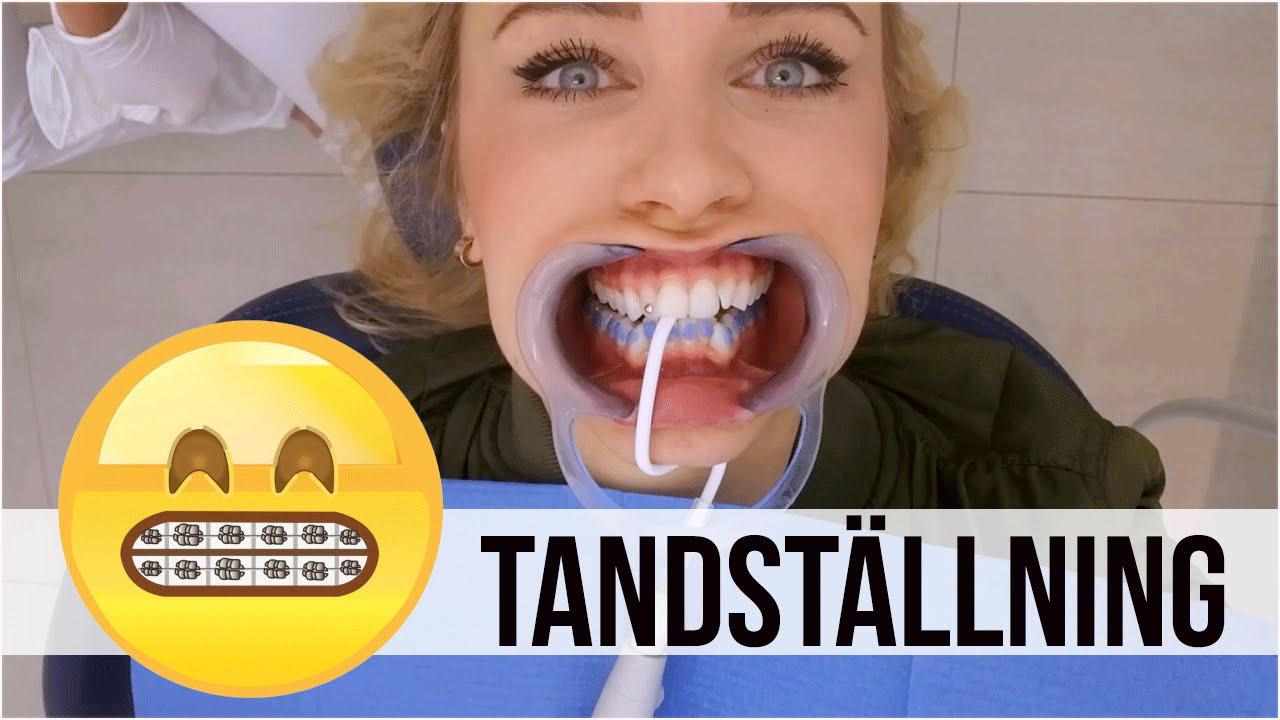 ida warg tandställning