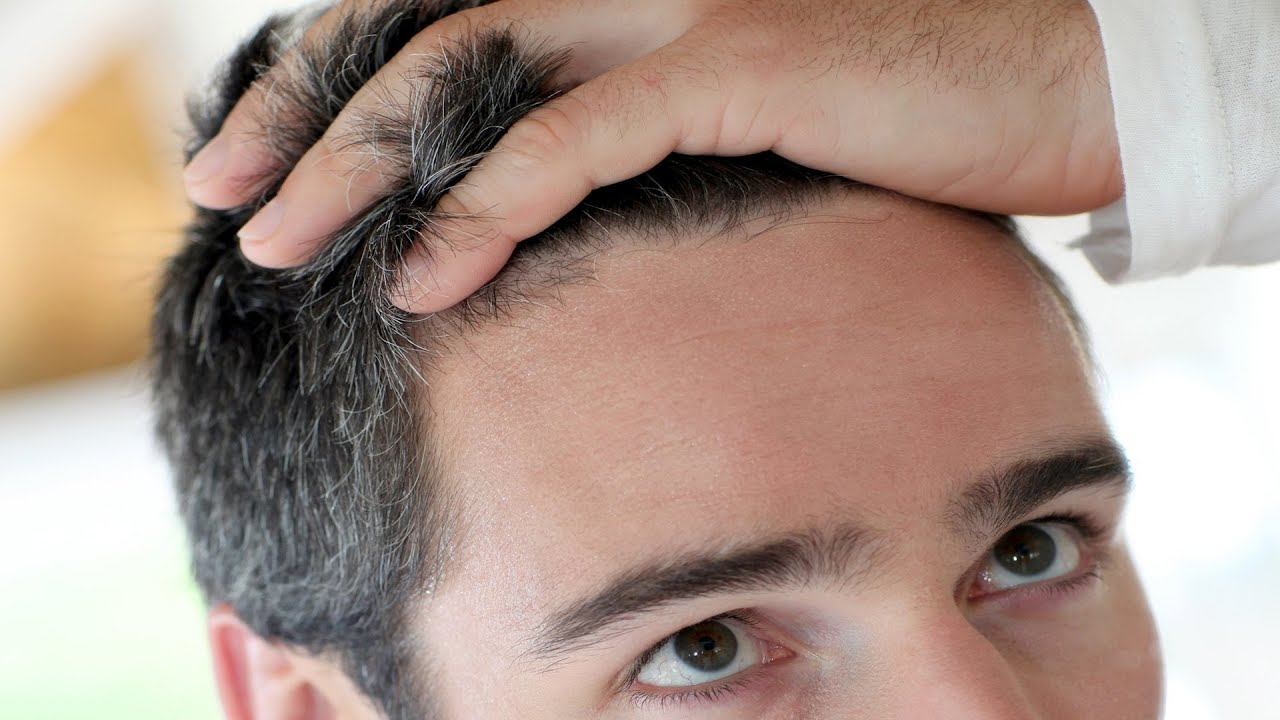 how to know if your hair is thinning