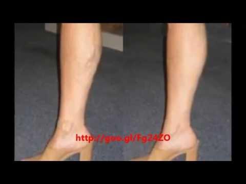vein laser treatment cost