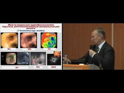 Мультимодальная бронхоскопия: новые возможности в диагностике раннего центрального рака легкого