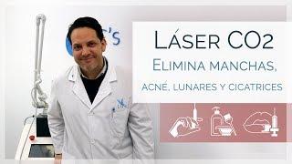 Adiós cicatrices, manchas y lunares. Láser CO2 | Dr. Máximo Evia | Clínicas LeClinic's