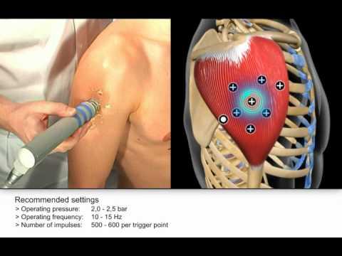 Central da Dor - Tratamento por Ondas de Choque - Ombro Músculo ...