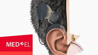 The MAESTRO Cochlear Implant System from MED-EL with OPUS2 XS | USA