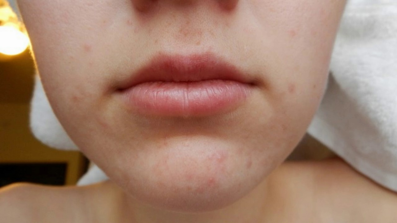 how to clear pimple on lip