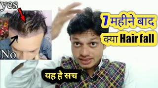 Hair transplant after hair fall | observation 7 month of hair condition aftre hair transplants