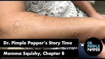 Dr. Pimple Popper's Weekly Story Time: Momma Squishy, Chapter 8!
