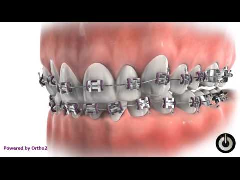 Bite Plate with Braces at Murray Orthodontics