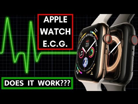Apple Watch ECG.  But Does It Work?