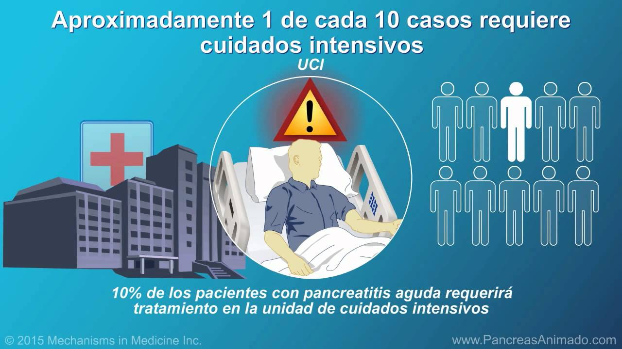 Manejo y tratamiento de la pancreatitis aguda - YouTube