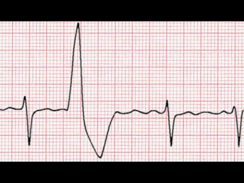 Can Anxiety Cause Arrhythmia In Dogs