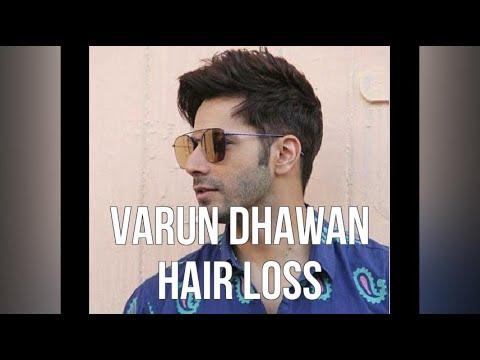 Varun Dhawan Hair Loss