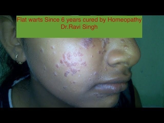 Flat Warts since 6 years cured by Homeopathy Dr Ravi Singh