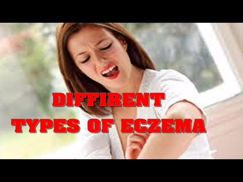 Clear up Eczema: Diffrent Types Of Eczema