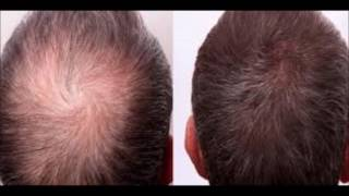 How To Stop Hair Loss - Superfoods That Increase Hair Growth