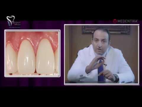 كيف يمكن تفادى مشاكل زراعة الأسنان