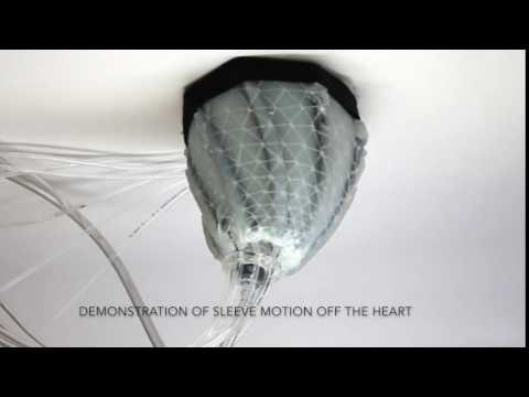 Demonstration of Sleeve Motion Off the Heart on YouTube