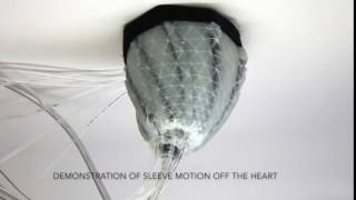 Demonstration of Sleeve Motion Off the Heart