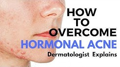 hqdefault - When Does Hormonal Acne Appear