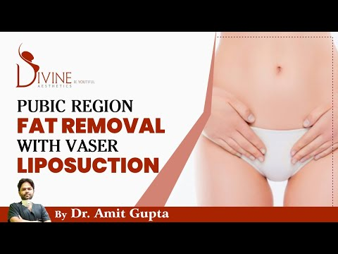 Pubic Region Fat Removal With Vaser Liposuction