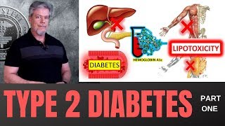 Type 2 Diabetes - Part I - What, How, and Why!
