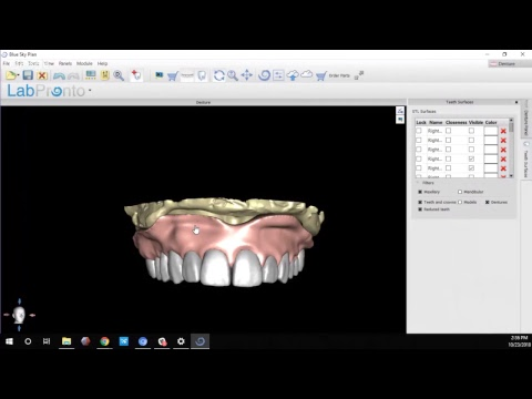 Denture Fabrication, The Easy Way