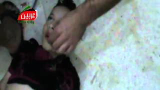 Attempts to revive children  chemical attack in syria 2013 8 21