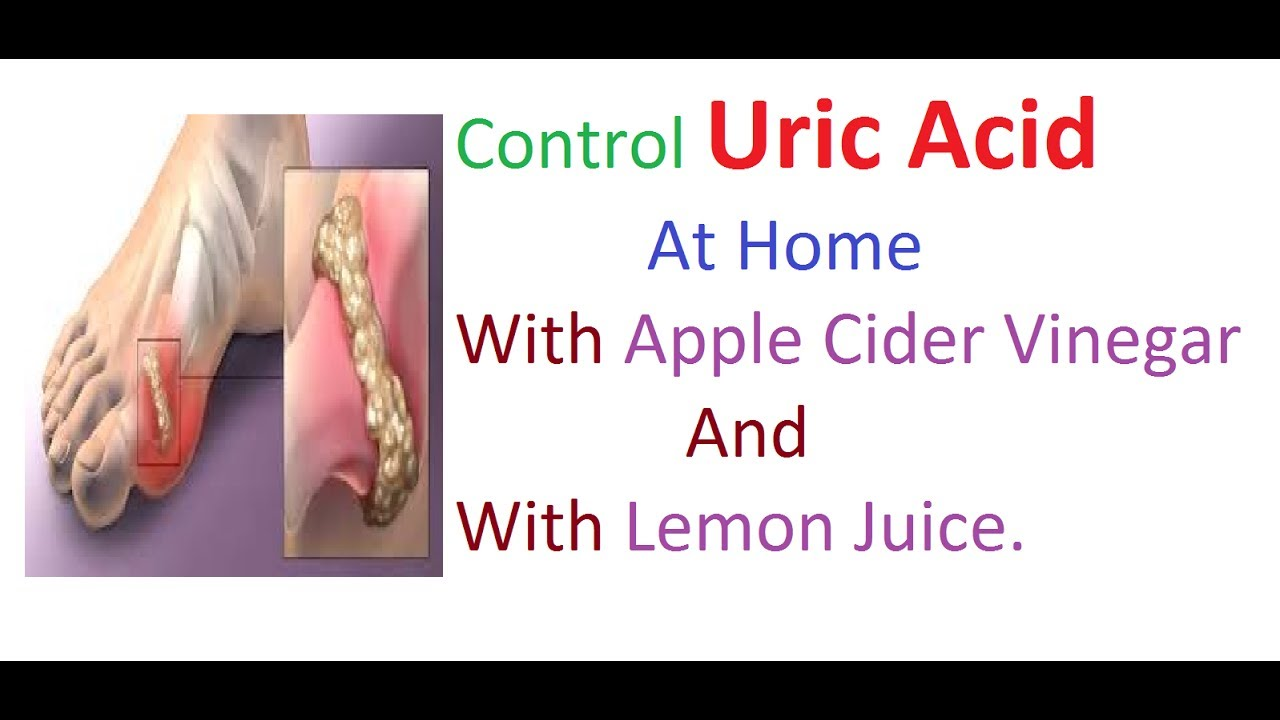 Control Uric Acid Level At Home with Apple Cider Vinegar and