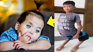 8 Детей, Вероятность Рождения Которых Равна 1 на 1000000! #3