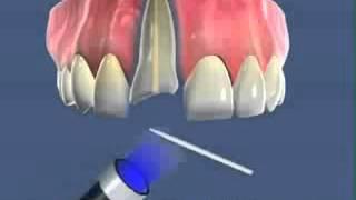 Стоматология лечение зубов имплантация в Москве Санкт Петербурге протезирование европейское качество(, 2015-04-14T01:01:09.000Z)