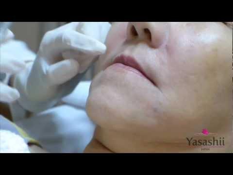 ฉีด Filler ปากให้สวยได้รูป ที่ Yasashii Clinic