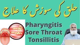 Pharyngitis [Sore Throat | Tonsillitis] | حلق کی سوزش کا علاج | Homeopathic Medicine for Pharyngitis