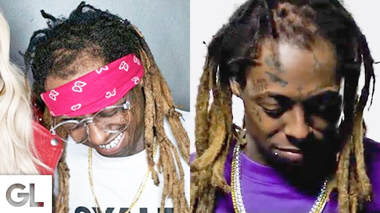 Lil Wayne has had a hair transplant