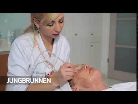 Jungbrunnen-Klinik   Jet Peel