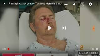 White daddy had a fight with 5 paint balls on his right eye and now is blind