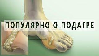 Что нужно знать о подагре и ее лечении