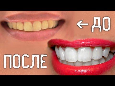 Вопрос: Как отбелить зубы всего за один час?
