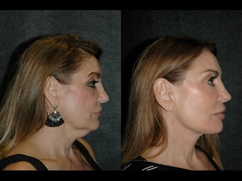 Deep Plane Facelift Before and After | Best Facelift Surgeon Dr Andrew Jacono Reviews