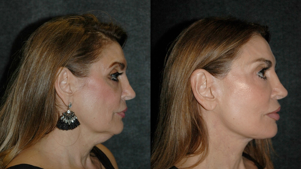 Deep Plane Facelift Before And After Best Facelift