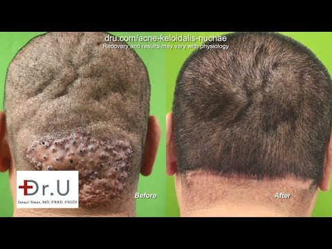 How to Get Rid of Bumps on Head - AKN Surgical Removal